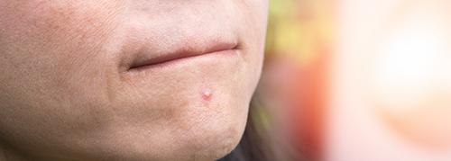 Qu'est-ce que l'acné et l'acide hyaluronique