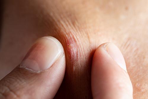 Pourquoi faut-il utiliser de l'acide hyaluronique contre l'acné